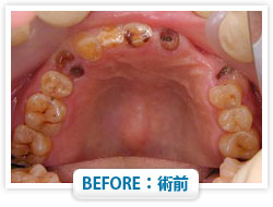 症例8 前歯を多数失った場合 BEFORE:術前