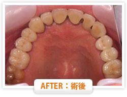 症例8 前歯を多数失った場合 AFTER:術後