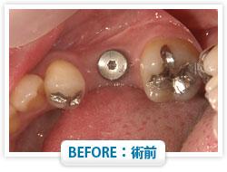 症例10 奥歯を1本失った場合 BEFORE:術前