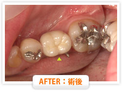 症例11 前歯の即日抜歯 仮歯を入れ治療継続中 AFTER:術後