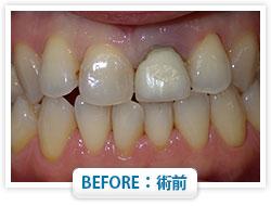 症例11 前歯の即日抜歯 仮歯を入れ治療継続中 BEFORE:術前