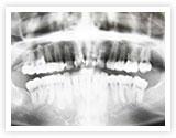 レントゲン・歯周病検査・顕微鏡による細菌検査